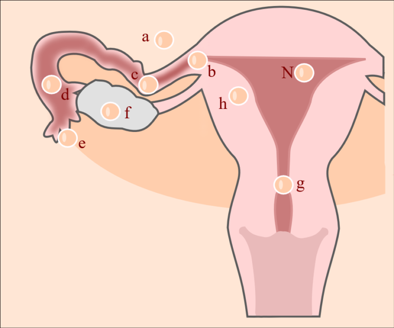 BABYOU • Ektope Schwangerschaft